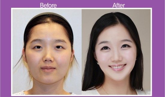 south-korean-cosmetic surgery